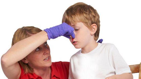 Что делать, если кровь пошла носом?